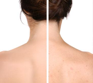 babor-anti-acne-back-treatment
