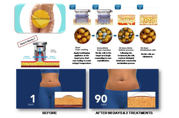 fat-freeze-slimming-3