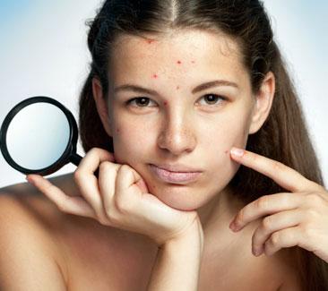 signature-elight-anti-acne-facial-treatment